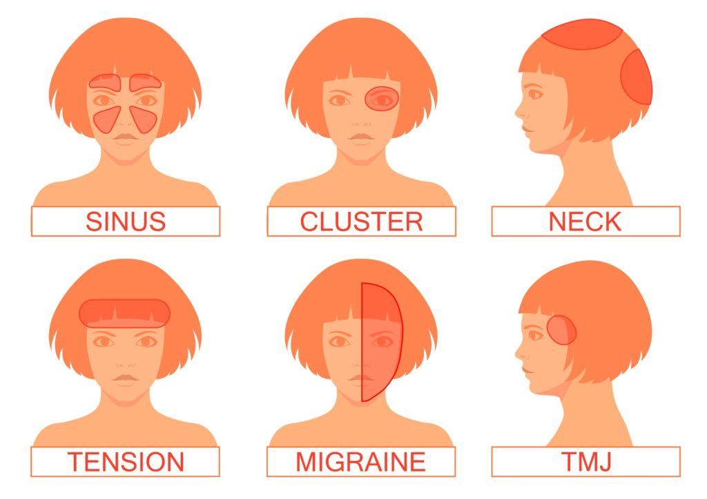 Acupuncture for Migraines Near Me